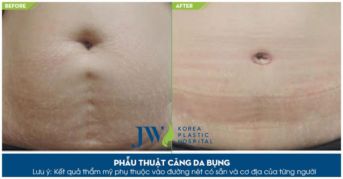 Vùng da bụng săn chắn, không còn tình trạng chảy xệ sau khi hút mỡ căng da bụng tại JW