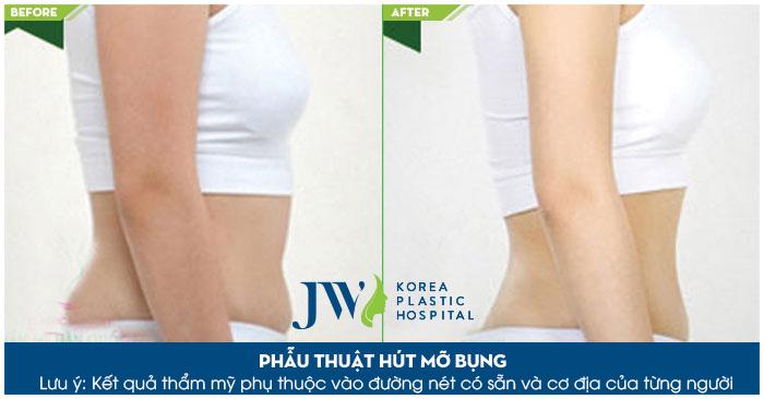 Hút mỡ bụng an toàn, hiệu quả bằng công nghệ Laser lipo hiện đại bạn sẽ yên tâm về kết quả