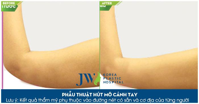 Công nghệ hút mỡ Laser lipo khắc phục mọi loại mỡ cứng đầu trên cơ thể