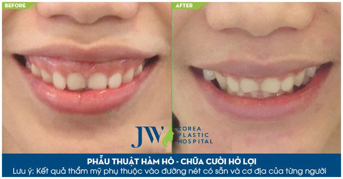 Tình trạng cười hở lợi được khắc phục sau phẫu thuật tại bệnh viện JW