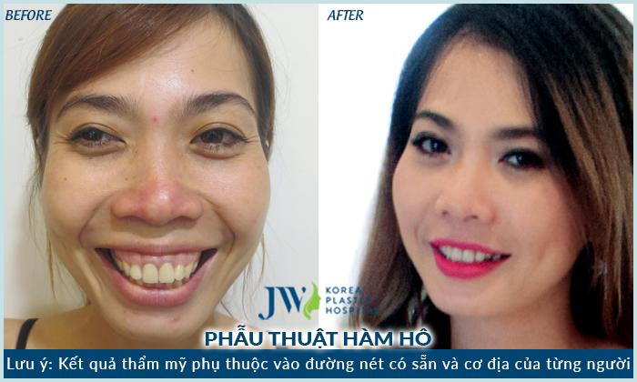 Hình ảnh khách hàng phẫu thuật hàm hô tại JW