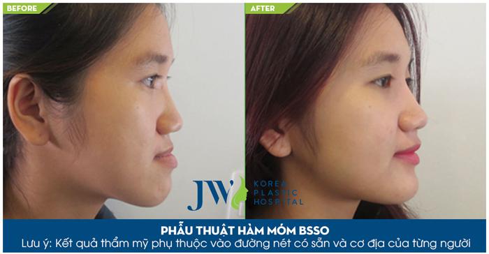 Phẫu thuật hàm móm BSSO khắc phục nhanh chóng tình trạng khiếm khuyết về hàm mặt