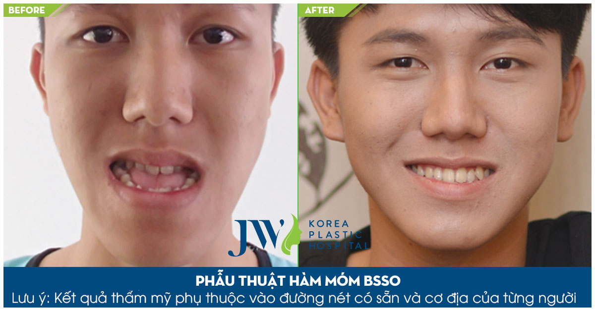 Phẫu thuật hàm móm bằng phương pháp BSSO mang lại nụ cười tự tin
