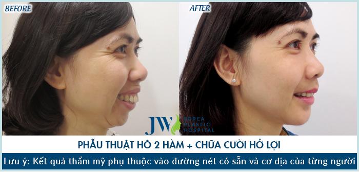 Hình ảnh khách hàng trước và sau khi phẫu thuật hàm hô tại JW