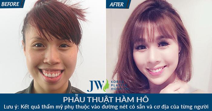 Xóa tan ngoại hình xấu, giải quyết tình trạng hàm hô nặng trong một lần phẫu thuật tại JW