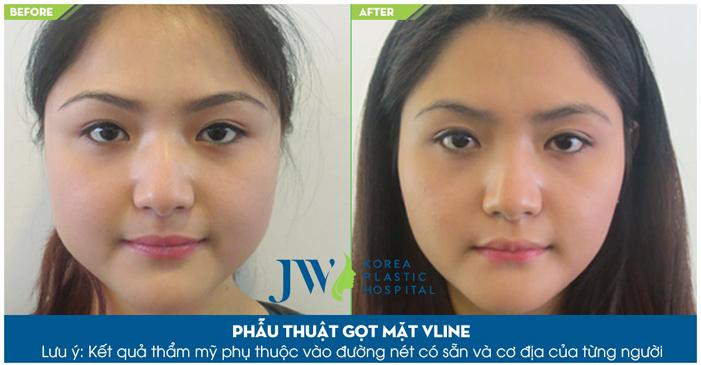 Gọt mặt V line giúp bạn sở hữu gương mặt thon gọn, mềm mại đẹp tự nhiên