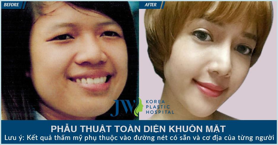 phẫu thuật toàn diện khuôn mặt Minh Yến