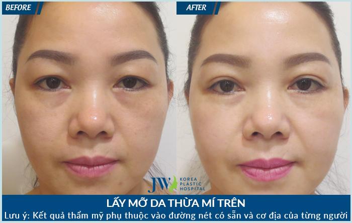 Sau khi lấy da dư mỡ thừa, vùng mắt trở nên trẻ hóa và mí mắt rõ ràng