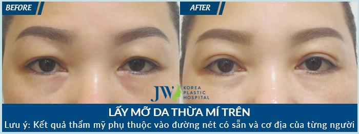 sau khi lấy mỡ mí mắt ở vùng mí trên cho khách hàng