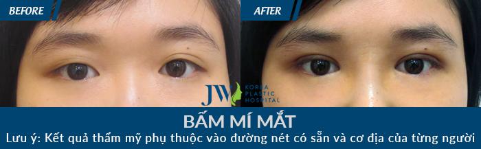 Nhiều khách hàng tìm lại vẻ đẹp đôi mắt nhờ nhấn mí Hàn Quốc tại JW