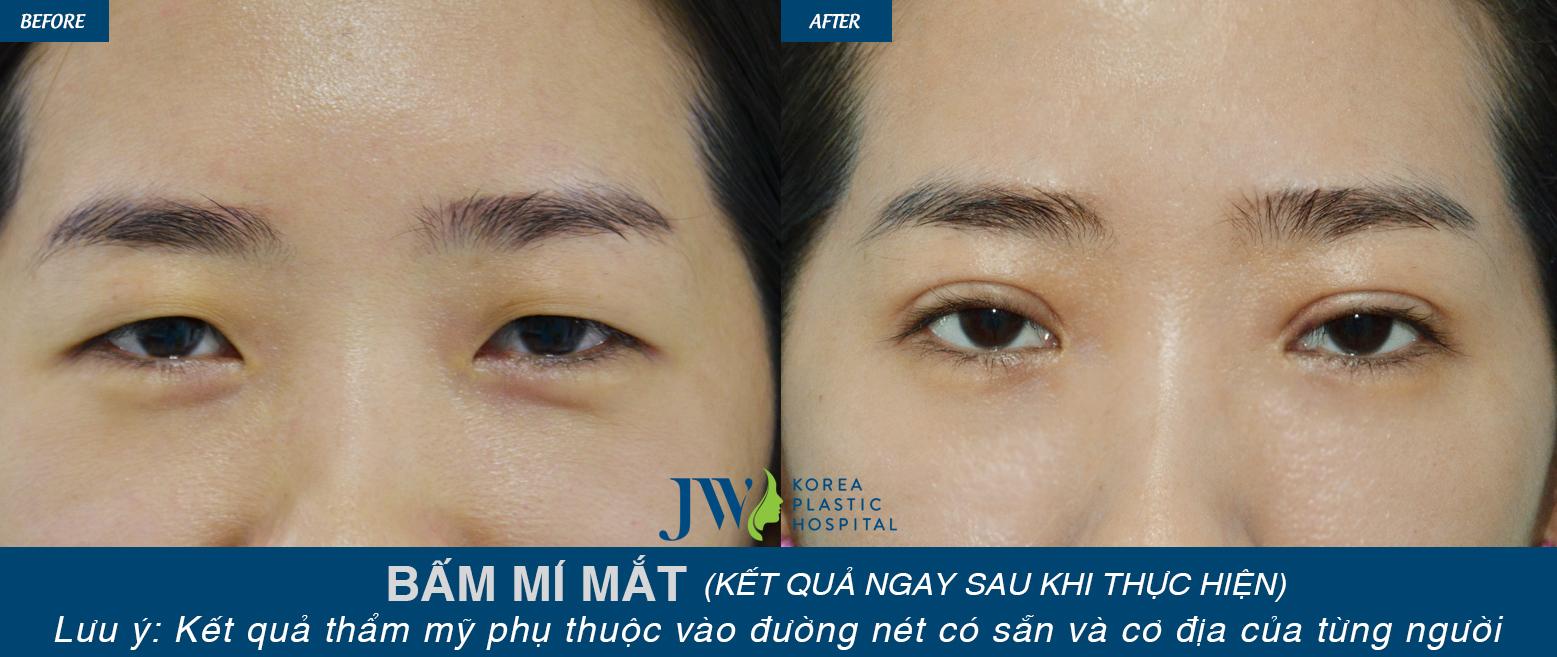 Sau khi bấm mí mắt, khách hàng đã có được đôi mắt 2 mí long lanh ấn tượng