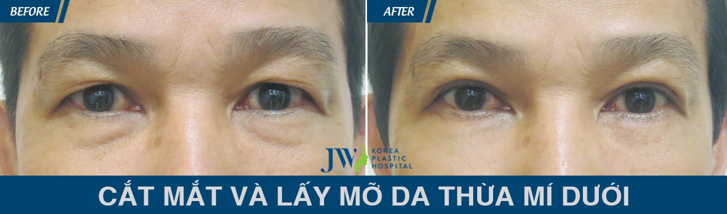 Cách chữa bọng mi mắt dưới bằng phẫu thuật lấy da và mỡ dư còn được nam giới thực hiện hiệu quả.