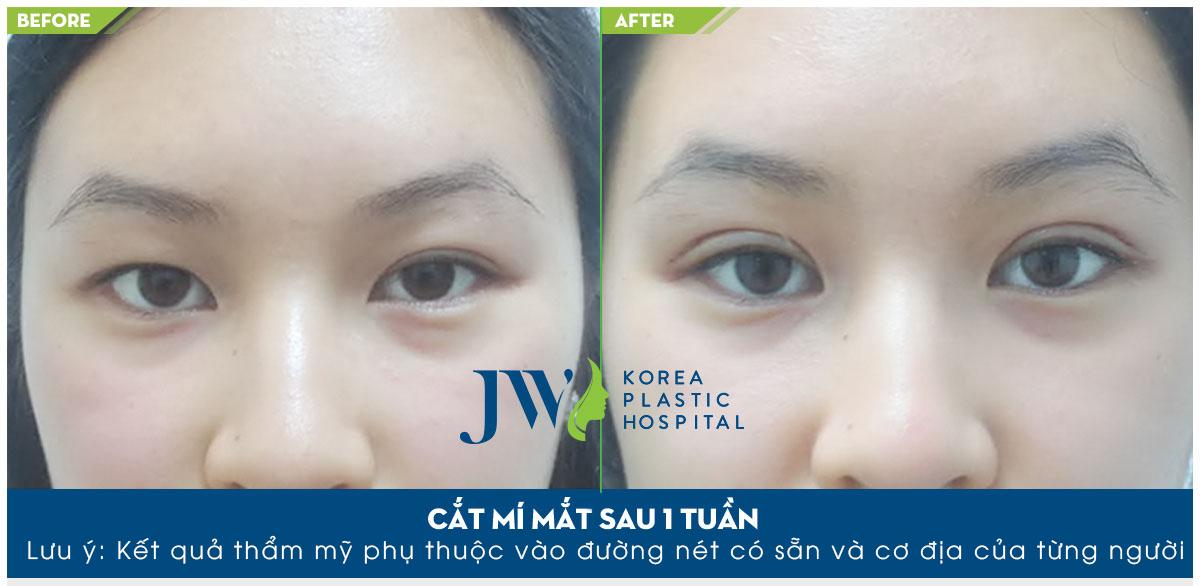 Đôi mắt 2 mí cân đối đẹp tự nhiên và linh hoạt hơn sau khi phẫu thuật tại JW