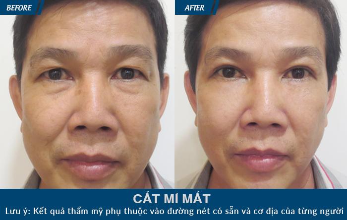 Nhiều khách hàng vô cùng ưng ý sau khi áp dụng phương pháp cắt mí mắt tại JW
