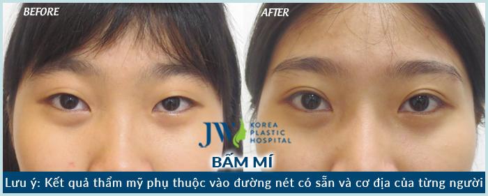 Mắt 2 mí to tròn long lanh sau khi thực hiện bấm mí công nghệ chuẩn Hàn của JW