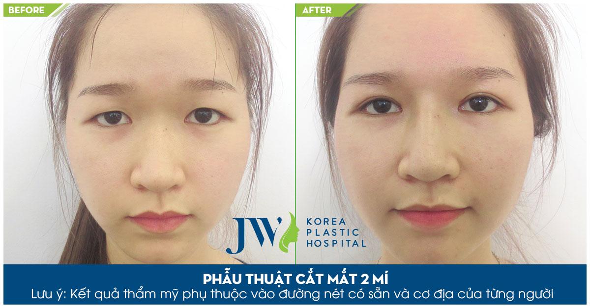 Công nghệ cắt mí mắt Hàn Quốc được thực hiện tại JW