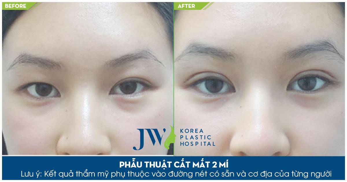 trước và sau khi cắt mí mắt