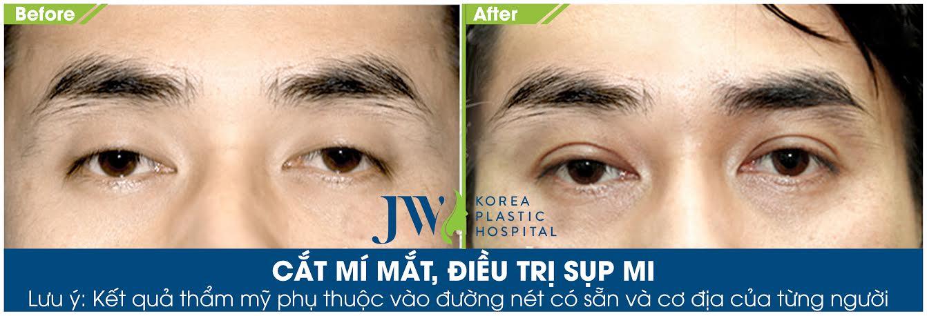 Cắt mắt 2 mí tại Bệnh viện thẩm mỹ JW Hàn Quốc cho khách hàng bị sụp mi do lão hóa, mắt trở nên có chiều sâu, hai mí đẹp tự nhiên