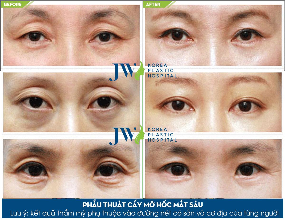 Phẫu thuật thẩm mỹ hốc mắt sâu