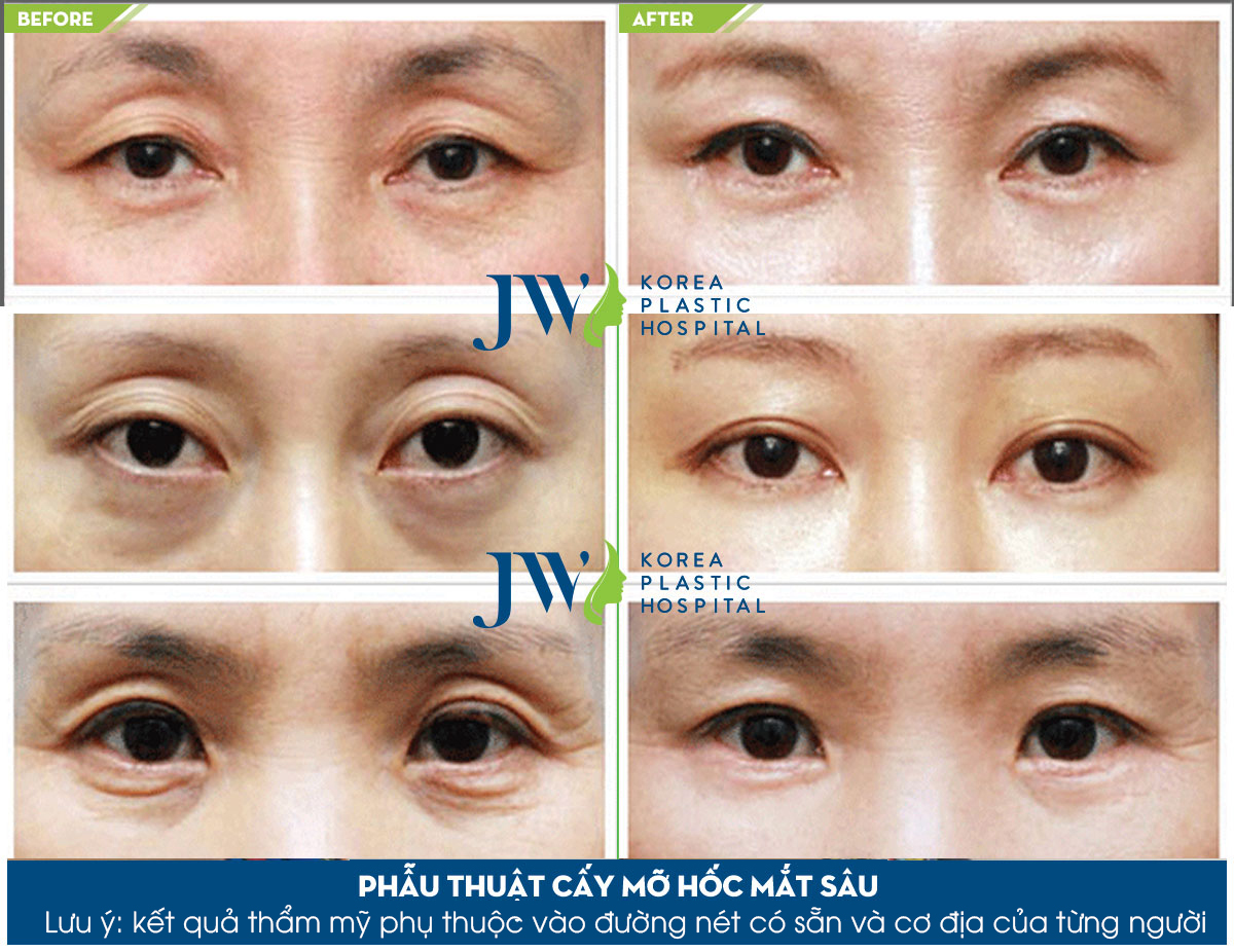 Sau phẫu thuật cấy mỡ hốc mắt