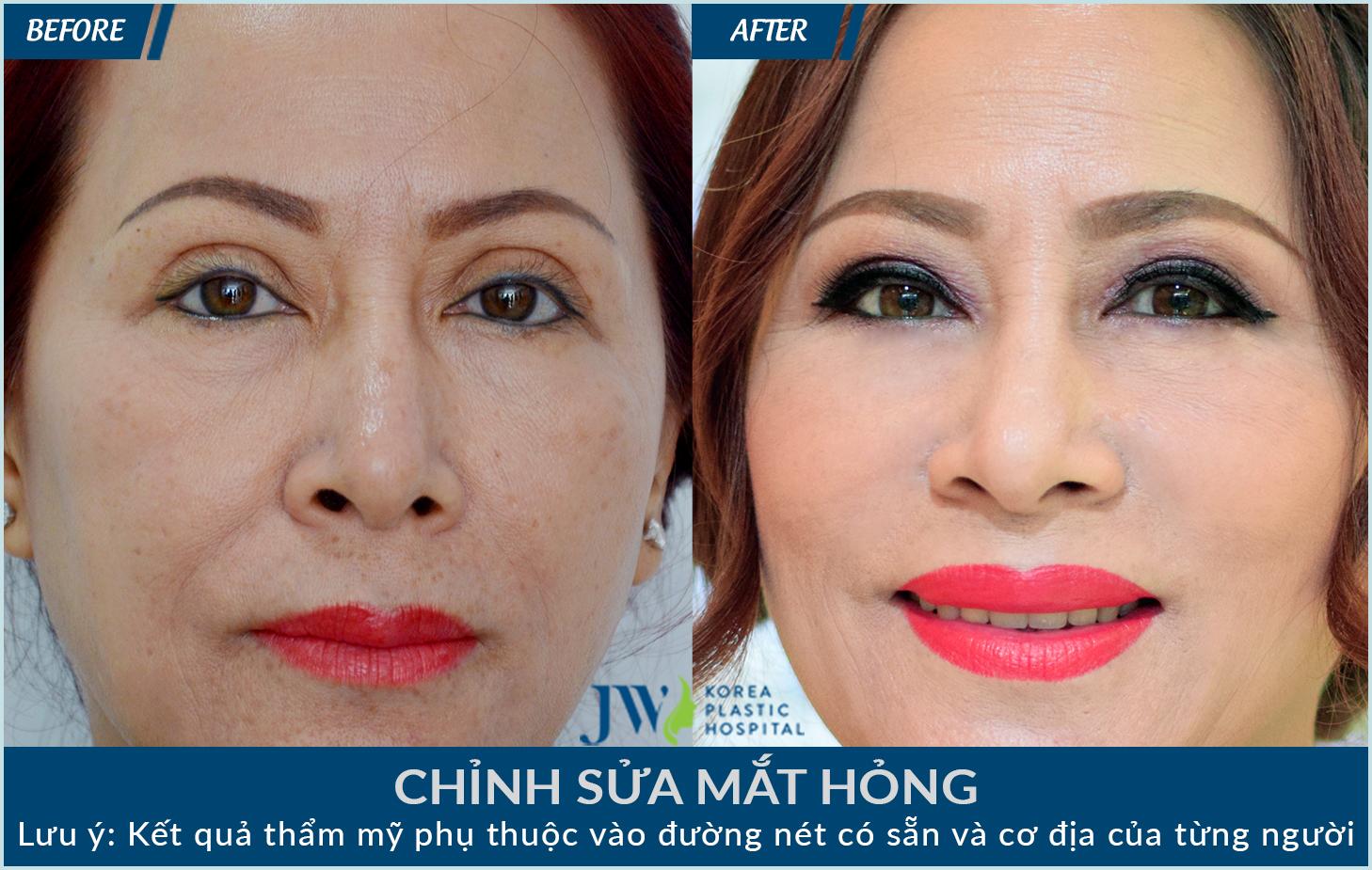 Những trường hợp cắt mí mắt bị hỏng được bác sĩ JW chỉnh sửa lại