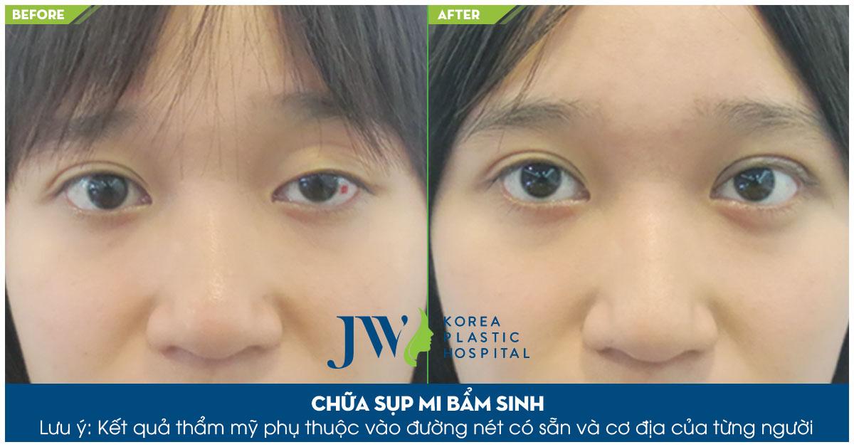 hẩm mỹ mắt to, khắc phục tình trạng sụp mí mắt bẩm sinh