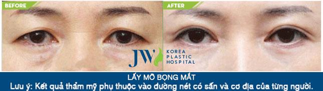Lấy mỡ bọng mắt mi dưới giúp mắt không còn cảm giác sưng phù mệt mỏi.