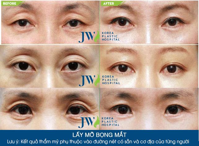 Phẫu thuật lấy mỡ bọng mắt là cách chữa bọng mắt hiệu quả