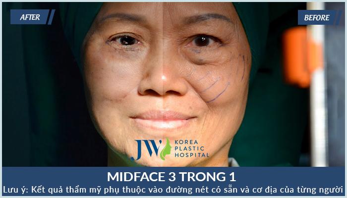 khách hàng midface 3 trong 1