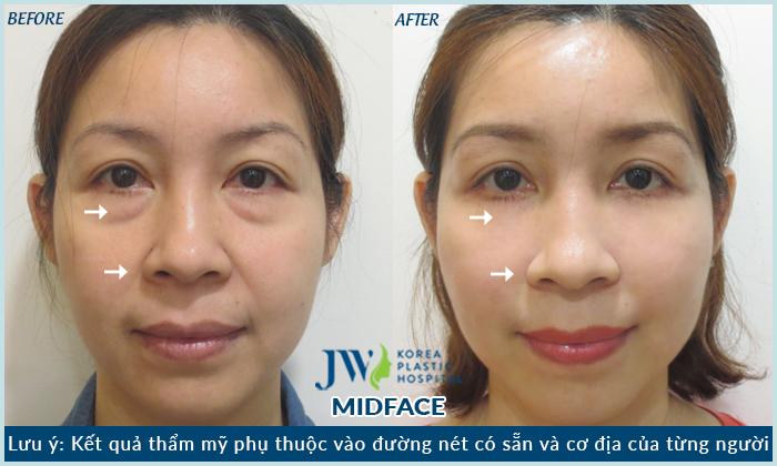 hình ảnh midface 3 trong 1