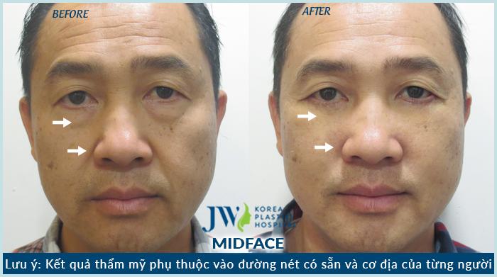 hình ảnh trước và sau khi Midface 3 trong 1