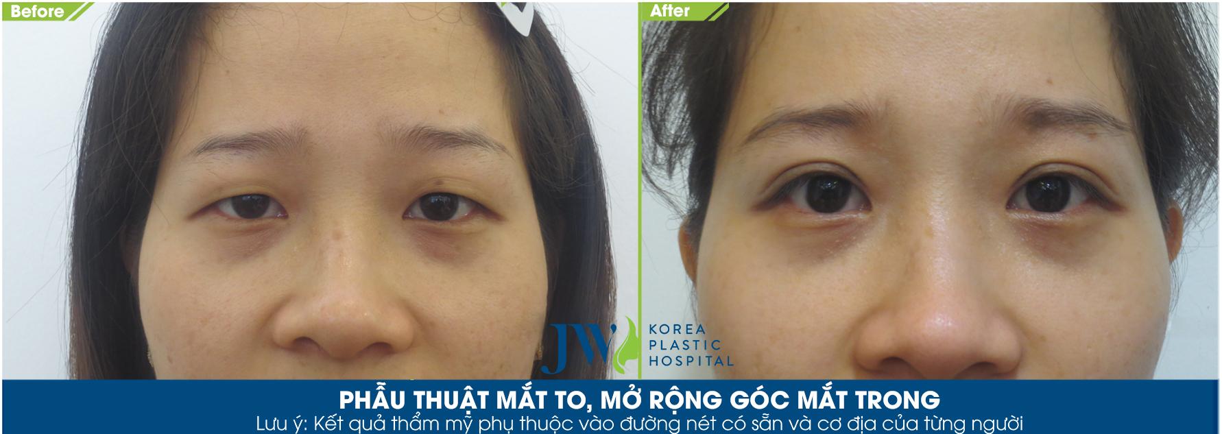 Đôi mắt mới của khách hàng đẹp tự nhiên và hài hòa với khuôn mặt