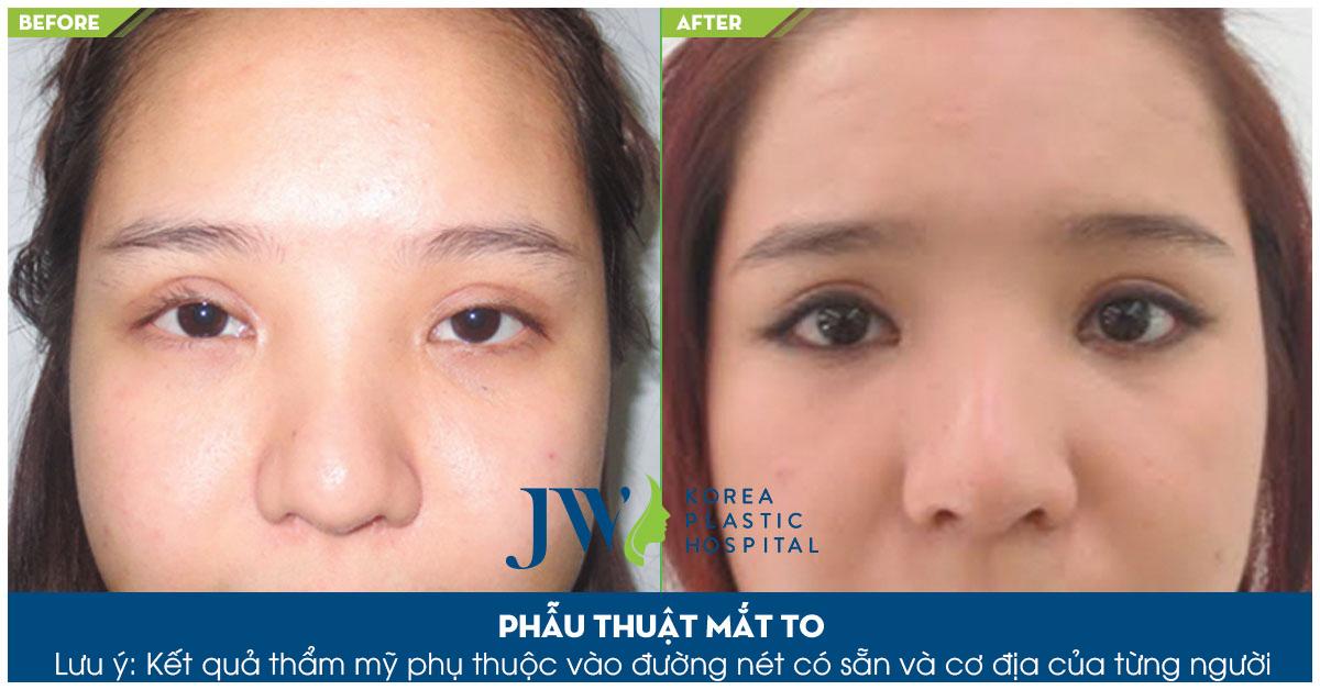 Đôi mắt to tròn, không còn cảm khác buồn bã sau khi thực hiện phẫu thuật chình hình mắt tại JW
