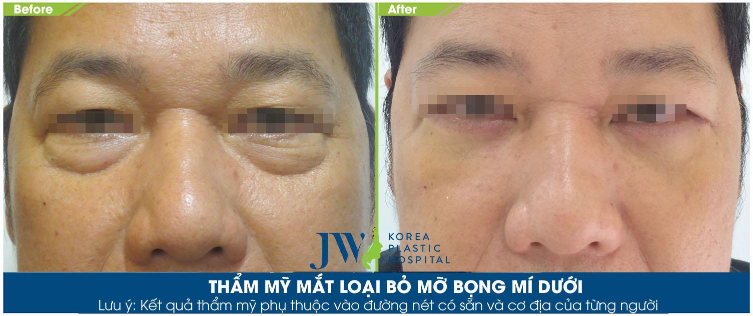 khách hàng thẩm mỹ cắt bọng mắt tại JW