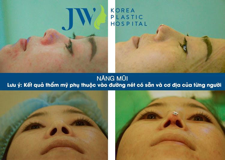 Chiếc mũi bị biến dạng da sử dụng chất làm đầy quá nhiều được các bác sĩ JW khắc phục lại