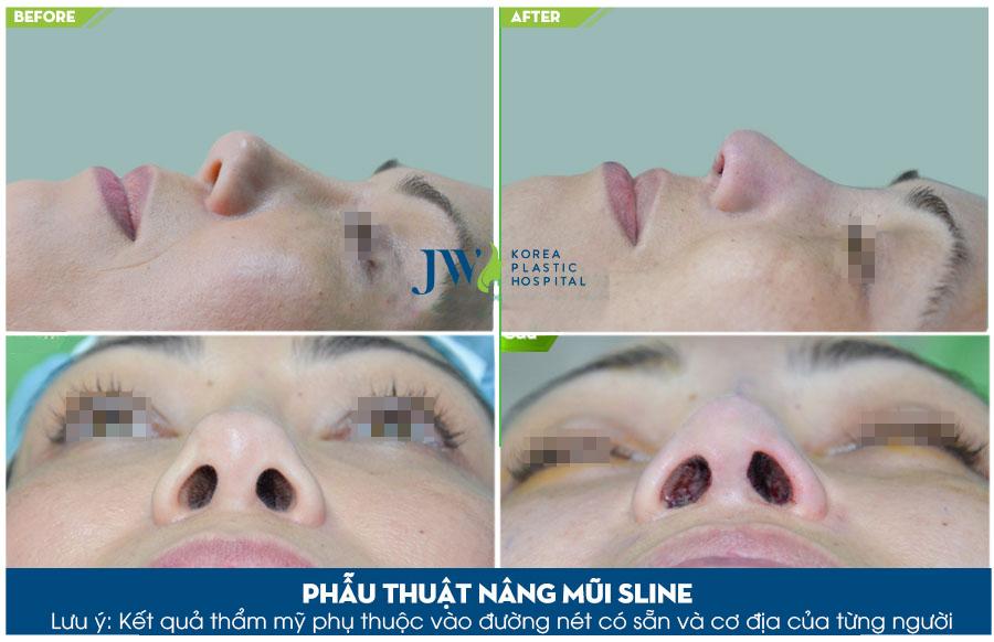 Những biến chứng phẫu thuật nâng mũi và cách khắc phục hiệu quả, an toàn