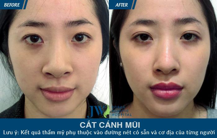 Bạn có thể thấy kết quả trước và sau khi thu gọn cánh mũi được khách hàng thực hiện phẫu thuật tại JW