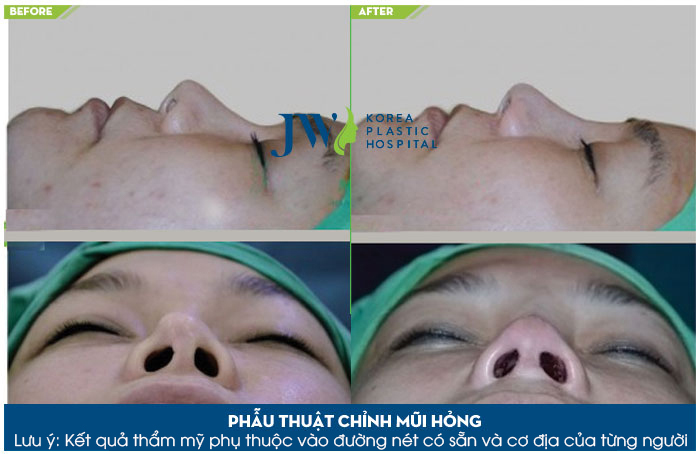 Hình ảnh được chụp lại ngay sau 2h phẫu thuật sửa mũi hỏng