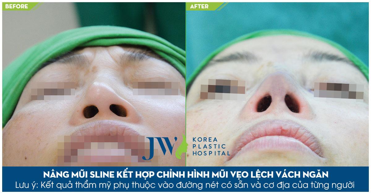 hình ảnh chị Như trước và sau sửa mũi bị lệch