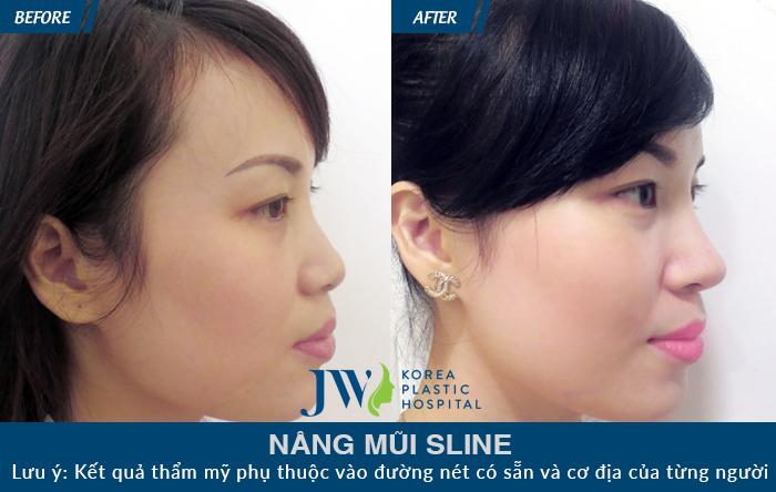 Dáng mũi đẹp, cân đối và ấn tượng sau khi thực hiện nâng mũi tại JW
