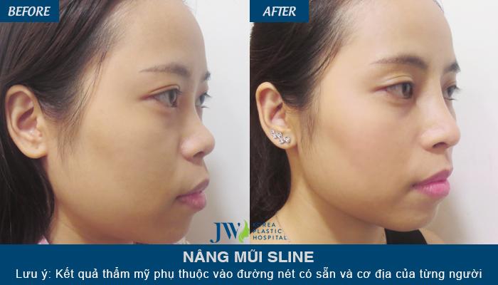 Khách hàng dễ dàng có được dáng mũi đẹp khi nâng mũi S line tại JW