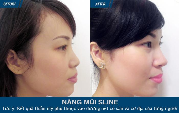 Khách hàng sở hữu dáng mũi S line chuẩn Hàn ấn tượng khi thực hiện nâng mũi tại JW