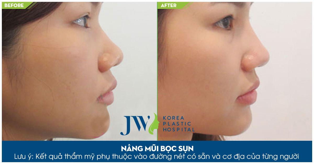 Nâng mũi bọc sụn tại JW là sự lựa chọn hoàn hảo cho khách hàng