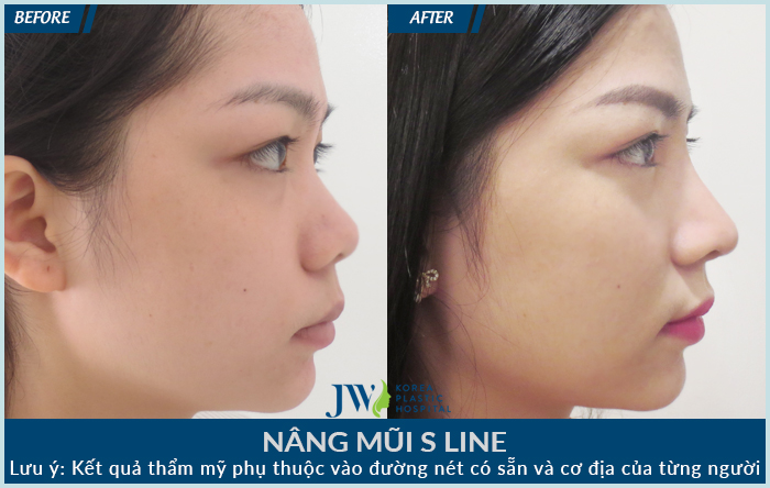 Trường hợp khách hàng bị lệch vẹo vách ngăn khiến chiếc mũi bị biến chứng, bác sĩ đã dùng sụn sườn theo phương pháp S line để can thiệp chỉnh sửa, dựng lại toàn bộ chiếc mũi