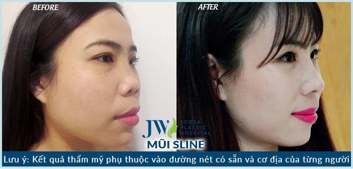 hình ảnh Hoa Hồng trước và sau khi nâng mũi