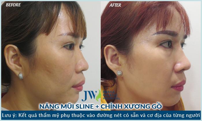 Kết quả sau khi nâng mũi s line kết hợp chỉnh xương gồ tại JW