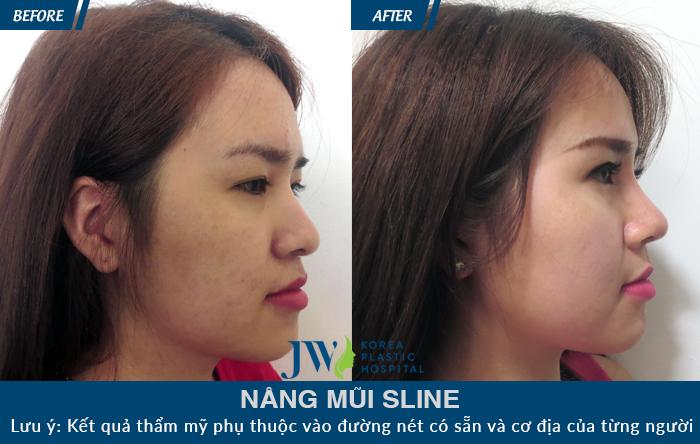 Nhiều khách hàng đã sở hữu chiếc mũi cao thẳng, mềm mại sau khi phẫu thuật tại JW