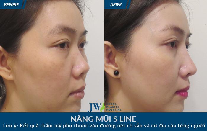 Khách hàng có chiếc mũi ngắn hếch được sử dụng nâng mũi S line bằng sụn sườn, chiếc mũi cao thon tạo đường nét sắc sảo cho gương mặt