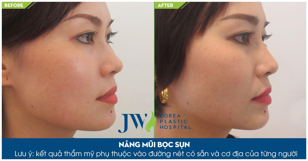 Sửa mũi bọc sụn giúp dáng mũi cao, đầu mũi tròn đầy cân đối