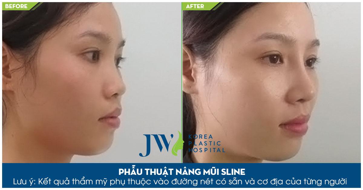 Chiếc mũi thấp tẹt được khắc phục bằng công nghệ nâng mũi S line
